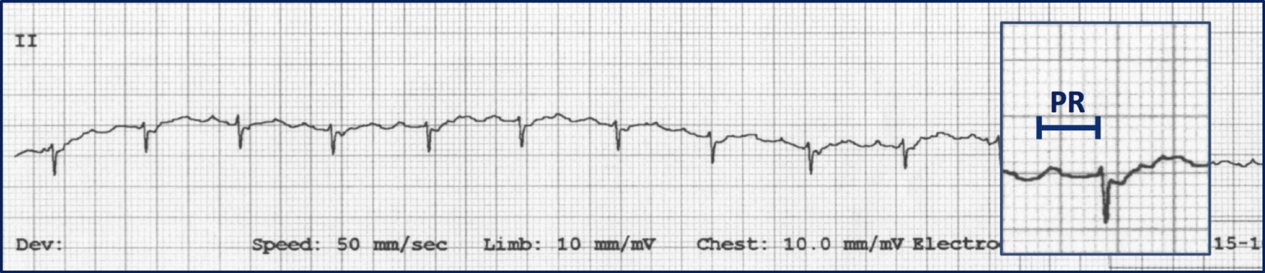 Fig 1: Lead II ECG in a cat showing overall negative QRS complex (decreased R-wave amplitude, prominent S-wave) consistent with a ventricular conduction disturbance. Prolonged PR interval (inset) indicates 1st degree atrioventricular block. Both findings suggest the possibility of cardiomyopathy.