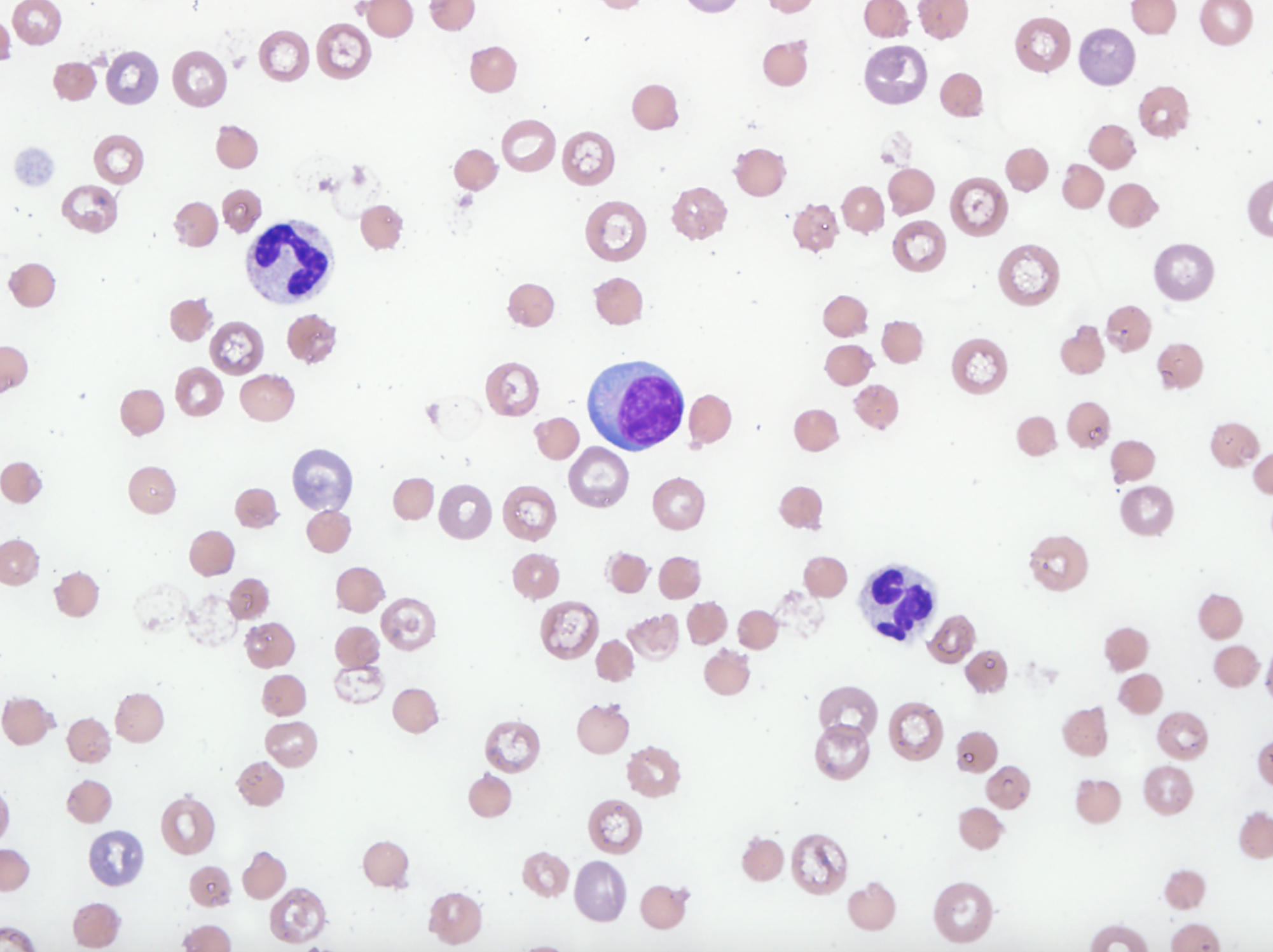 Blood smear showing moderate numbers of Heinz bodies and red blood cell ghosts were seen, indicating Heinz body hemolytic anemia.