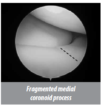 minimally invasive surgery (MIS) for Fragmented medial coronoid process