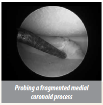 mis-2minimally invasive surgery (MIS) probing a Fragmented medial coronoid process