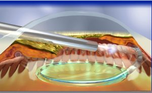 Laser Surgery. Picture of limbal approach ECPC.