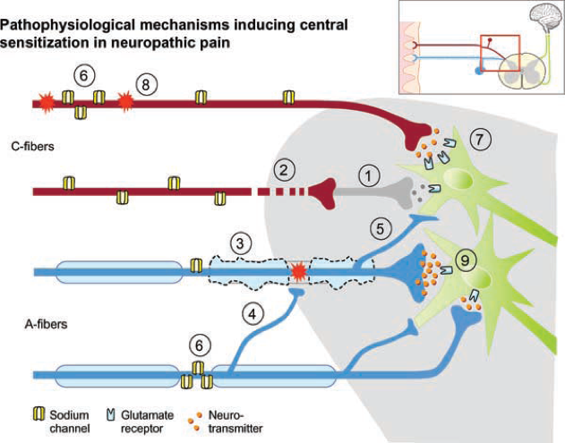 Figure 2 Pathophysiology of C-fiber pain pathway. Gabapentin reduces C-fiber transmission through the dorsal root ganglion (1).
