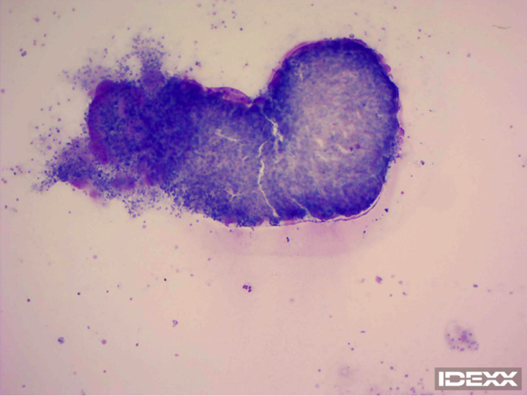 Figure 1. Abdominal fluid cytology. 200X.