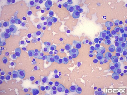Figure 1. Interdigital mass. 500x magnification, Wright-Giemsa stain.