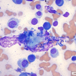 Figure 3. Interdigital mass. 1000x magnification, Wright-Giemsa stain.