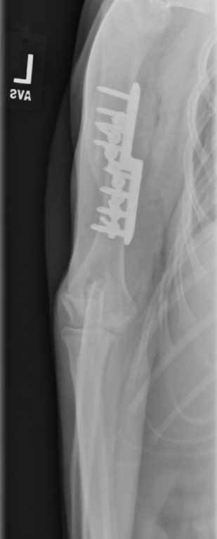 Figure 5. Anterior-posterior (AP) radiograph of the left front leg after sliding humeral osteotomy (SHO).It is also worth noting we find ourselves in the infancy of veterinary regenerative medicine. While anecdotally, therapies such as platelet rich plasma and stem cell therapy show promise, there remains a void of peer reviewed, objective research. At MedVet, these cutting-edge therapy options are available to our patients. We are also participating in various upcoming research to add to the knowledge in the veterinary community. Our experience thus far indicates there is a bright horizon for these new therapies.