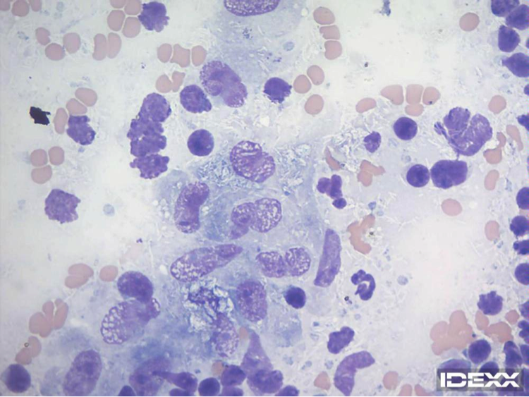 Figure 3. Lymph node cytology. 100x objective.