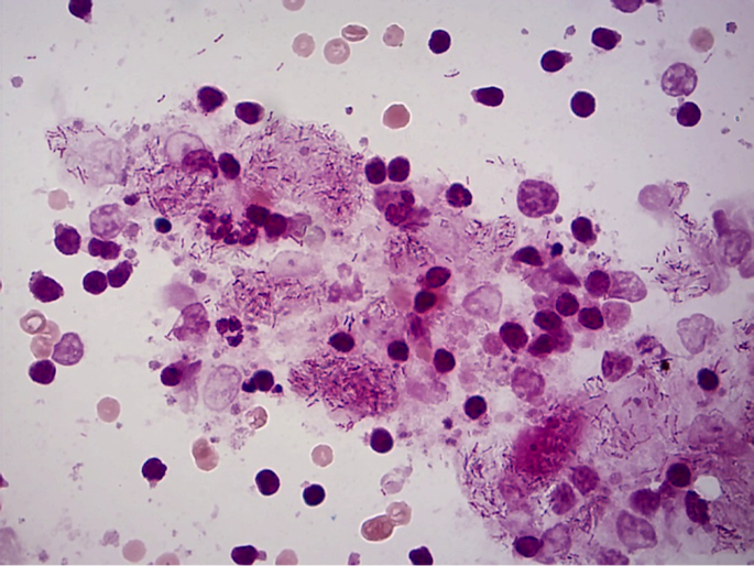 Figure 4. Acid fast stain: showing Acid fast bacilli present. 100x objective.
