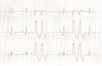 Figure 2. Lead I-III in a dog showing an underlying sinus rhythm with two, ventricular couplets.