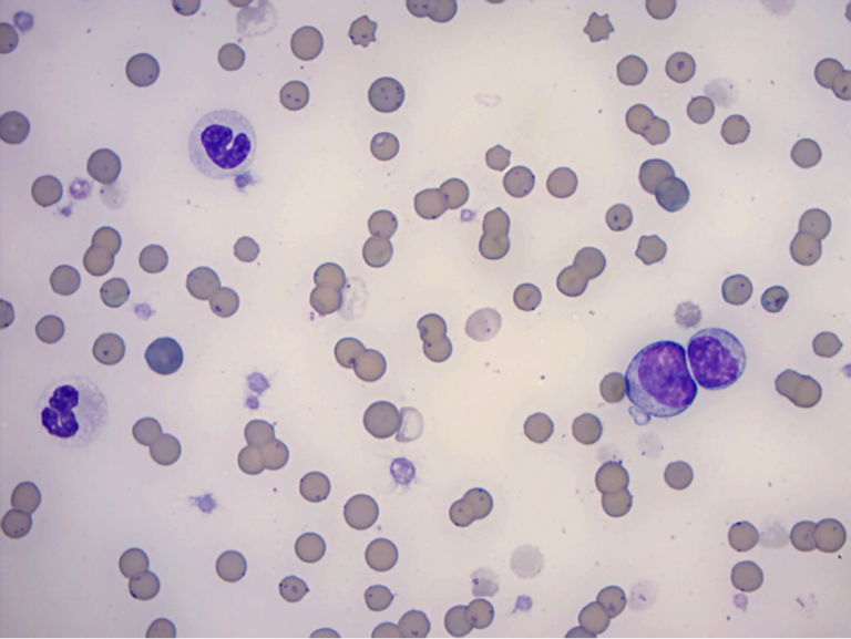 Figure 3. Blood Smear Examination from a 3-year-old anemic cat. 100x Objective.
