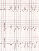 Figure 3. Lead I-III in a dog showing one sinus beat followed by ventricular tachycardia.