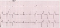 EKG accelerated idioventricular rhythm in a dog