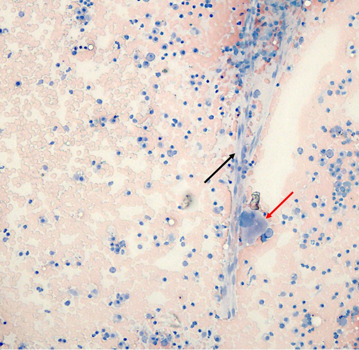 Figure 1. Highly cellular sample containing capillaries (black arrow) and megakaryocytes (red arrow). Wright-Giemsa stain. 100x magnification.