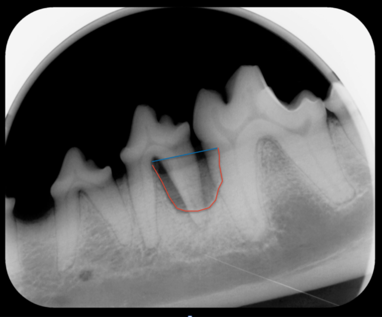 Dental Xray from a dog. Vertical bone loss of the left mandibular fourth premolar and first molar. The blue line illustrates where the alveolar bone should extend too. The red line illustrates the where the bone has receded due to periodontitis. Vertical bone loss may be treated by bone grafting or extraction.