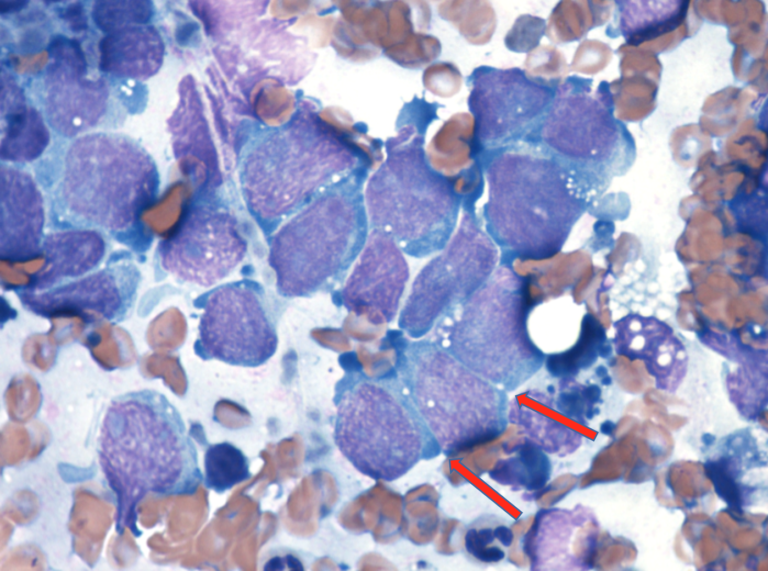 Fine needle aspirate form a puppy with an abdominal mass. Representative cells with a round to polygonal shape with occasional distinct cytoplasmic junctions (arrows).