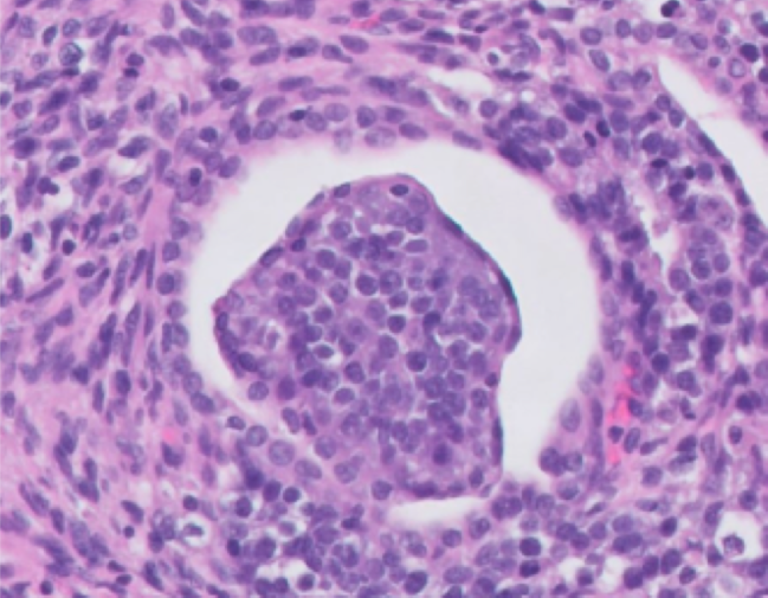 A representative area of the nephroblastoma with a primitive glomerulus in a dog.